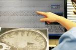Foto di un tracciato dell'epilessia