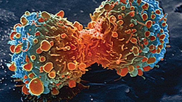 cancro, neoplasia, tumore, Calabria, Salute