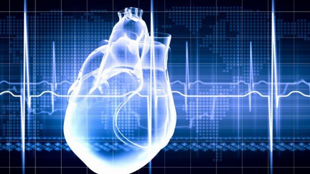 infarto, sanità, Catanzaro, Calabria, Società