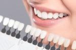 Dal dentista con l'emofilia, ora maggiore sicurezza