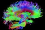 Apre il più grande laboratorio virtuale sul cervello (fonte: Courtesy of the Laboratory of Neuro Imaging and Martinos Center for Biomedical Imaging, Consortium of the Human Connectome Project)