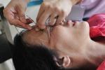 L'agopuntura contro la paura del dentista
