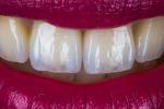 I denti in futuro si ricostruiranno con un gel