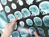 arsi di Alzheimer