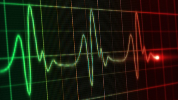 corigliano rossano sanotà, tempi elettrocardiogramma calabria, Nicola Giannettasio, Cosenza, Calabria, Cronaca