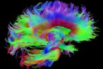 (fonte: Courtesy of the Laboratory of Neuro Imaging and Martinos Center for Biomedical Imaging, Consortium of the Human Connectome Project)