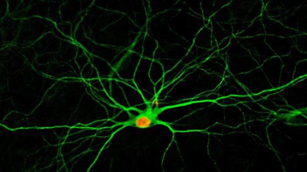 alzheimer, neurone, Salute e Benessere