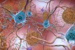 Rappresentazione artistica delle placche dell'Alzheimer (fonte: NIH Image Gallery)