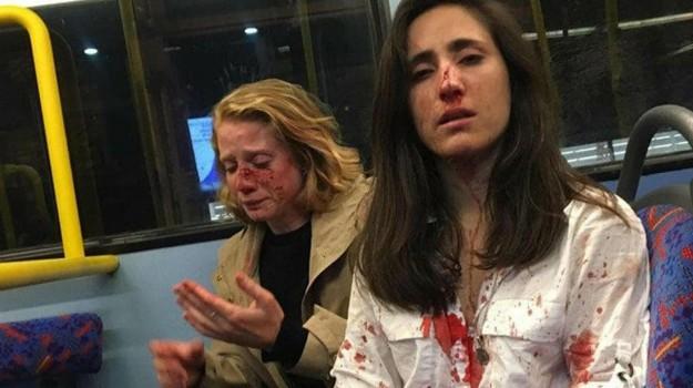 lesbiche, londra, violenza sulle donne, Sicilia, Mondo