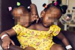 Dal Senegal a Londra: Merieme e Ndeye, gemelline siamesi impossibili da separare