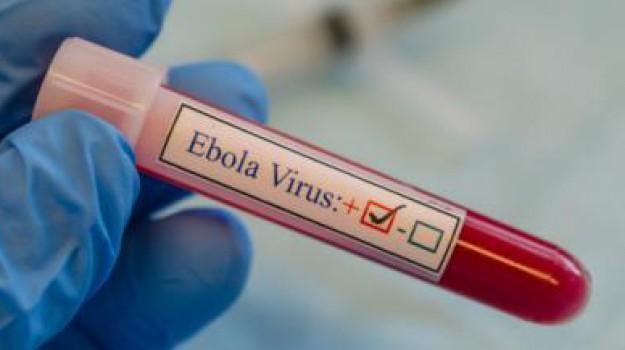 ebola, esplosione laboratorio russo, vaiolo, Nikolai Krasnikov, Salute e Benessere