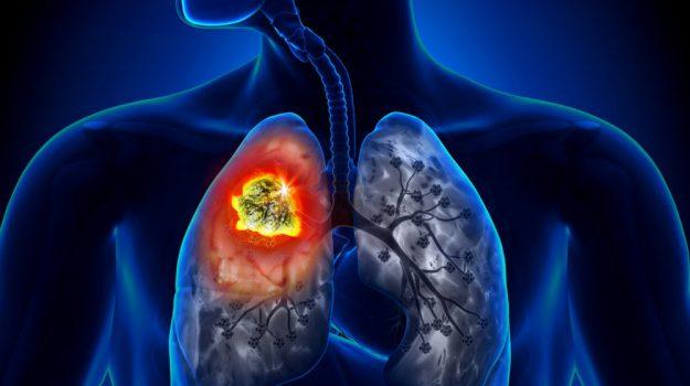 cancro, tumore polmone, Salute e Benessere