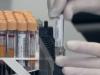 "Coronavirus, 278 tamponi ""fantasma"": usciti dai radar dell'Asp cosentina"