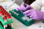 """Desametasone, il farmaco che può curare il coronavirus: """"Riduce la mortalità"""""""