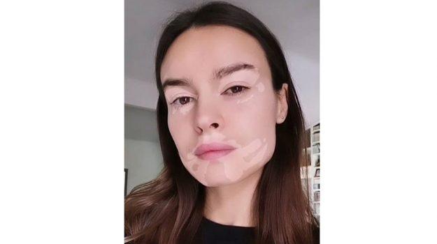 Kasia Smutniak e la vitiligine, l'attrice crea un filtro per Instagram: la challenge dei vip