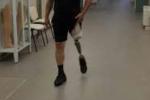Lamezia, il Centro Protesi Inail realizza la prima protesti con ginocchio elettronico