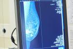 """Tumore al seno, Europa Donna """"Test genomici non ancora rimborsati"""""""