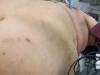 Operato all'Irccs di Messina un uomo di 317 kg, è tra i più pesanti della Sicilia
