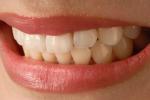 """""""Prevenire è meglio che curare"""". Dallo spot del dentifricio... al Covid"""